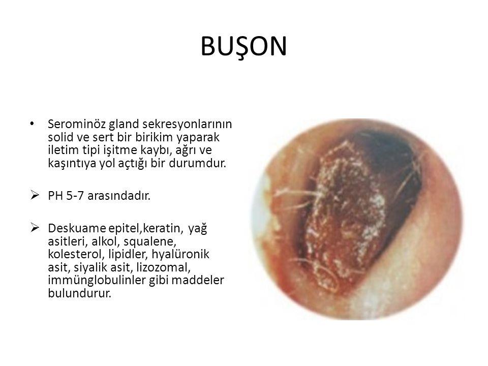 BUŞON Serominöz gland sekresyonlarının solid ve sert bir birikim yaparak iletim tipi işitme kaybı, ağrı ve kaşıntıya yol açtığı bir durumdur.  PH 5-7