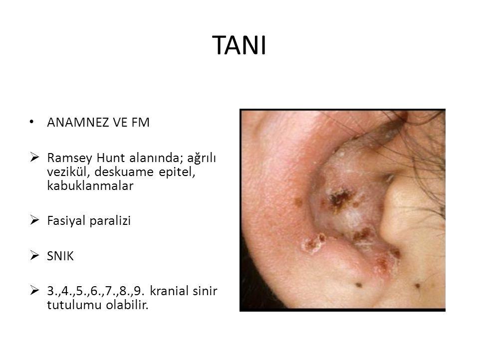 TANI ANAMNEZ VE FM  Ramsey Hunt alanında; ağrılı vezikül, deskuame epitel, kabuklanmalar  Fasiyal paralizi  SNIK  3.,4.,5.,6.,7.,8.,9. kranial sin
