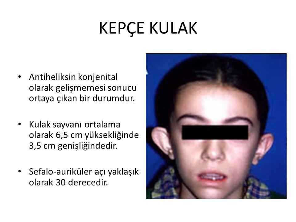 KEPÇE KULAK Antiheliksin konjenital olarak gelişmemesi sonucu ortaya çıkan bir durumdur. Kulak sayvanı ortalama olarak 6,5 cm yüksekliğinde 3,5 cm gen