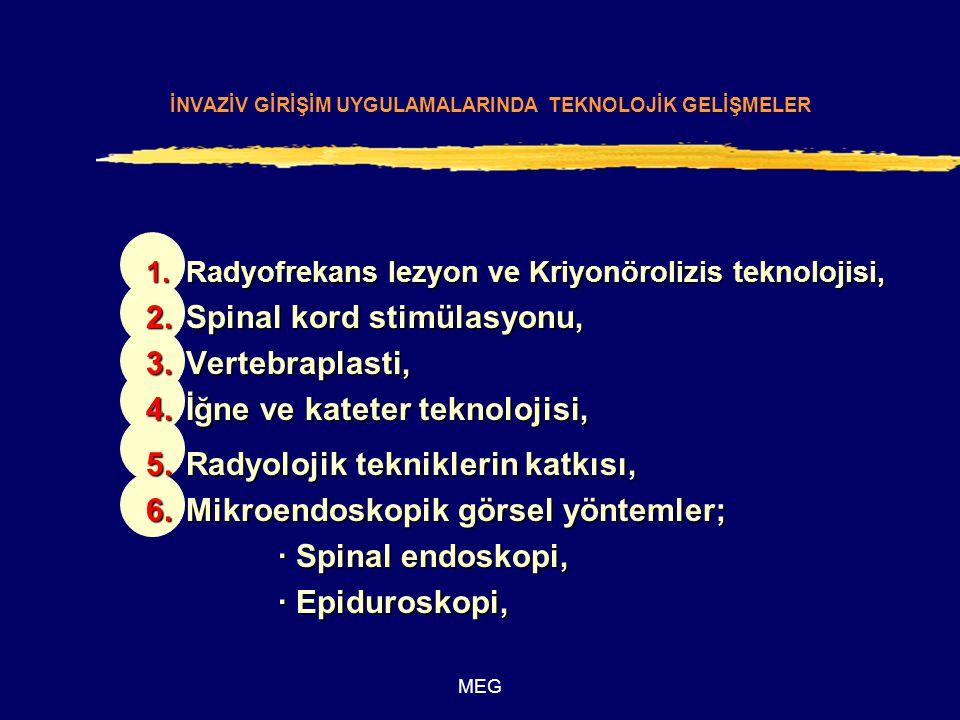 İNVAZİV GİRİŞİM UYGULAMALARINDA TEKNOLOJİK GELİŞMELER 1.Radyofrekans lezyon ve Kriyonörolizis teknolojisi, 2.Spinal kord stimülasyonu, 3.Vertebraplast