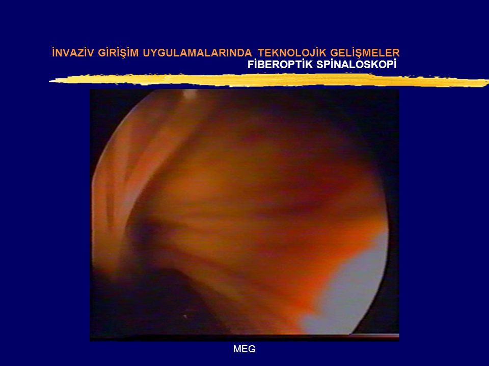 MEG zFiberoptik Spinaloskopi İNVAZİV GİRİŞİM UYGULAMALARINDA TEKNOLOJİK GELİŞMELER FİBEROPTİK SPİNALOSKOPİ
