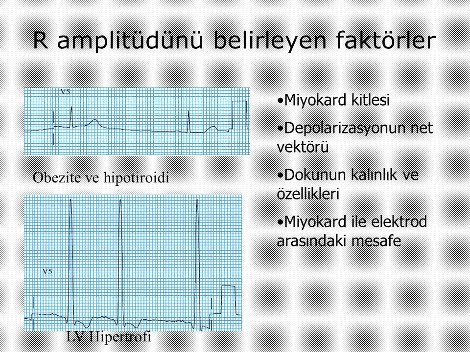 R amplitüdünü belirleyen faktörler LV Hipertrofi Obezite ve hipotiroidi Miyokard kitlesi Depolarizasyonun net vektörü Dokunun kalınlık ve özellikleri