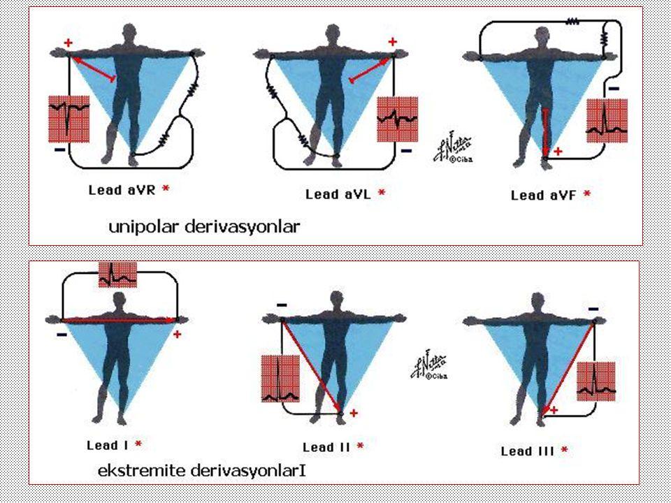Atrial dilatasyonlar Sağ atrial Sol atrial Bi-atrial Sol atrial genişleme 1- geniş p dalgası >0,11 ms 2-P dalgasında çentik 3- V 1 derivasyonunda p dalgasının son kısmındaki negatif defleksiyonun derinlik ve genişliğinin > 1 mm Sağ atrial genişleme D 2-3 aVF 'de p dalgasının yüksek olması