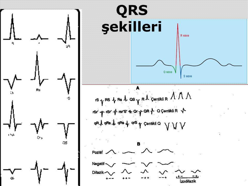 QRS şekilleri
