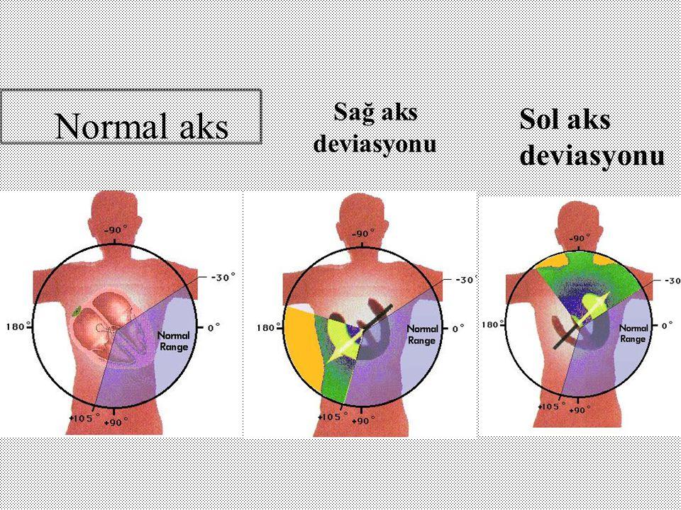 Normal aks Sağ aks deviasyonu Sol aks deviasyonu