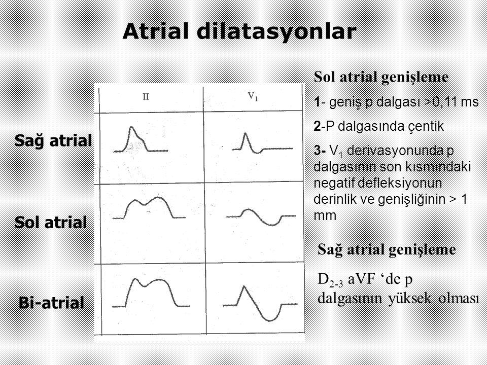 Atrial dilatasyonlar Sağ atrial Sol atrial Bi-atrial Sol atrial genişleme 1- geniş p dalgası >0,11 ms 2-P dalgasında çentik 3- V 1 derivasyonunda p da
