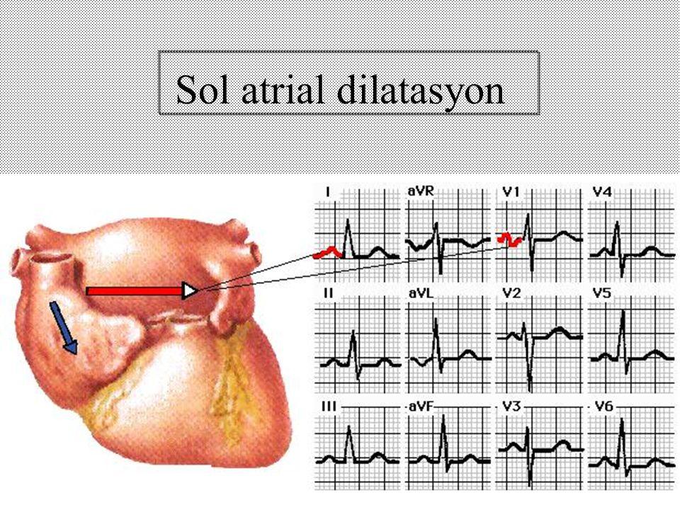 Sol atrial dilatasyon