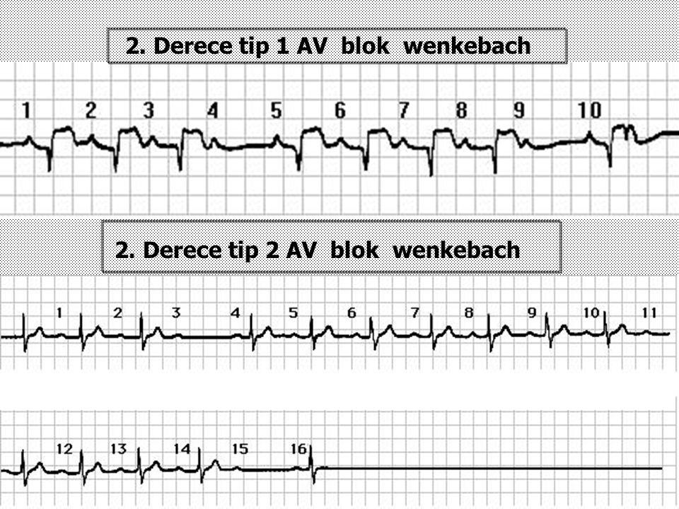 2. Derece tip 1 AV blok wenkebach 2. Derece tip 2 AV blok wenkebach