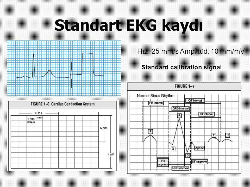 Standart EKG kaydı Hız: 25 mm/s Amplitüd: 10 mm/mV Standard calibration signal