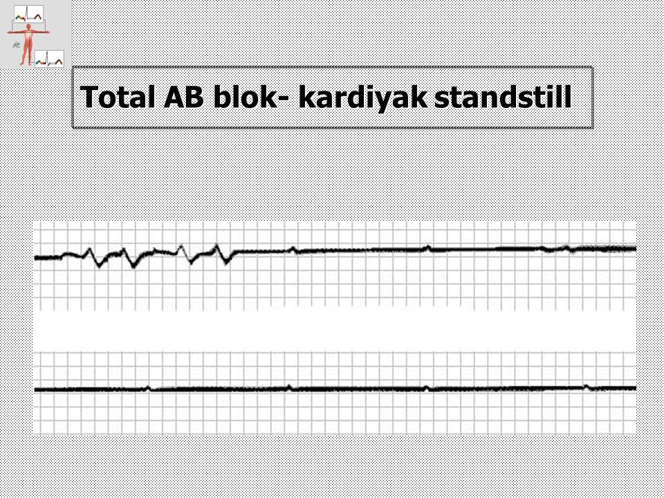 Total AB blok- kardiyak standstill