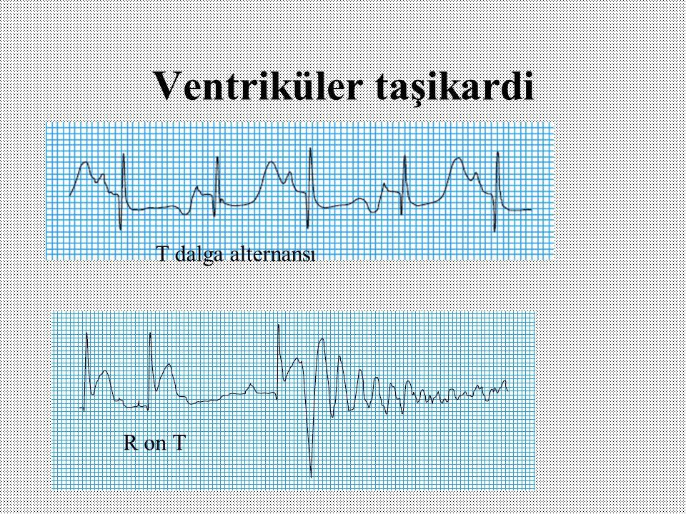 Ventriküler taşikardi R on T T dalga alternansı