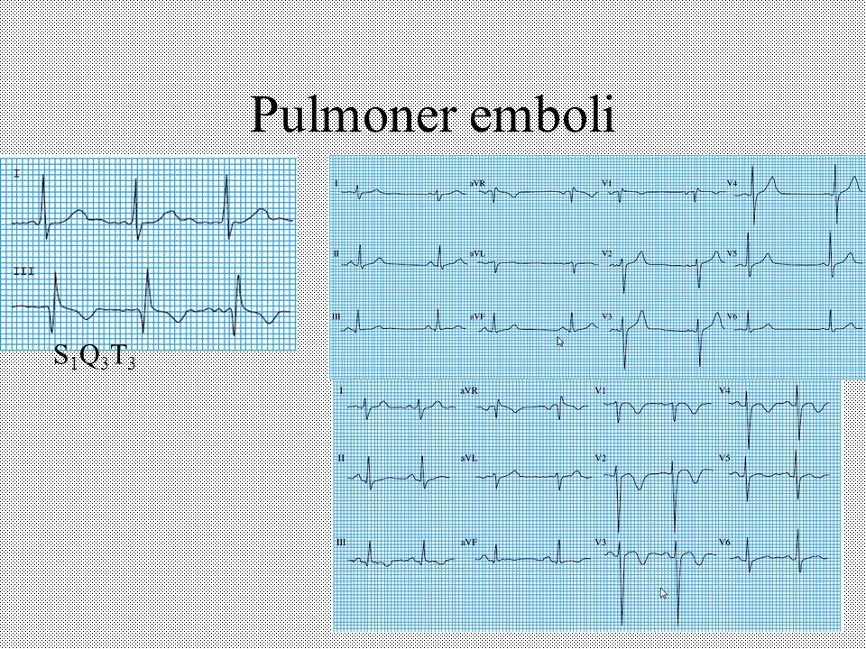 Pulmoner emboli S1Q3T3S1Q3T3