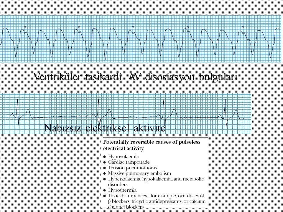 Ventriküler taşikardi AV disosiasyon bulguları Nabızsız elektriksel aktivite