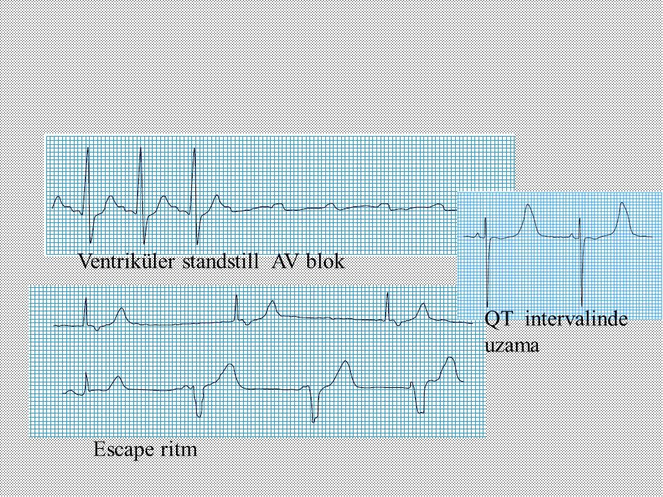 Ventriküler standstill AV blok Escape ritm QT intervalinde uzama