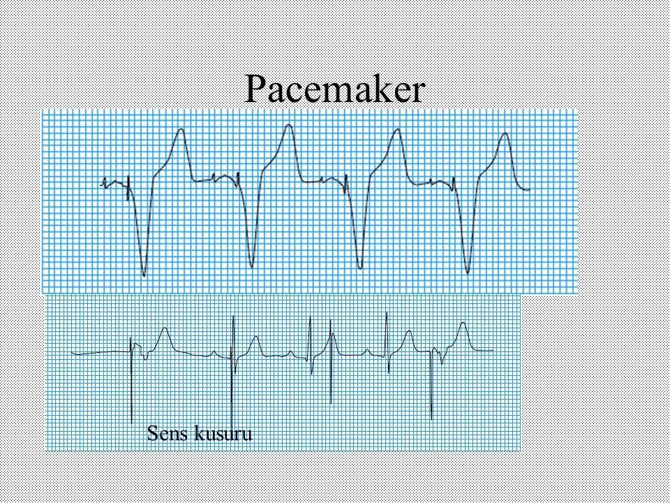 Pacemaker Sens kusuru