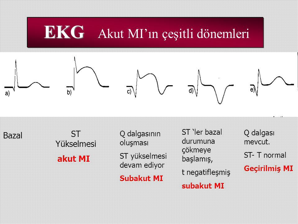EKG EKG Akut MI'ın çeşitli dönemleri ST Yükselmesi akut MI akut MI Bazal Q dalgasının oluşması ST yükselmesi devam ediyor Subakut MI ST 'ler bazal dur