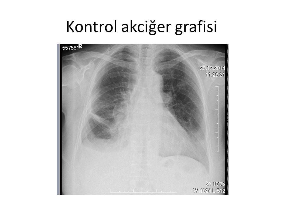 Kontrol akciğer grafisi