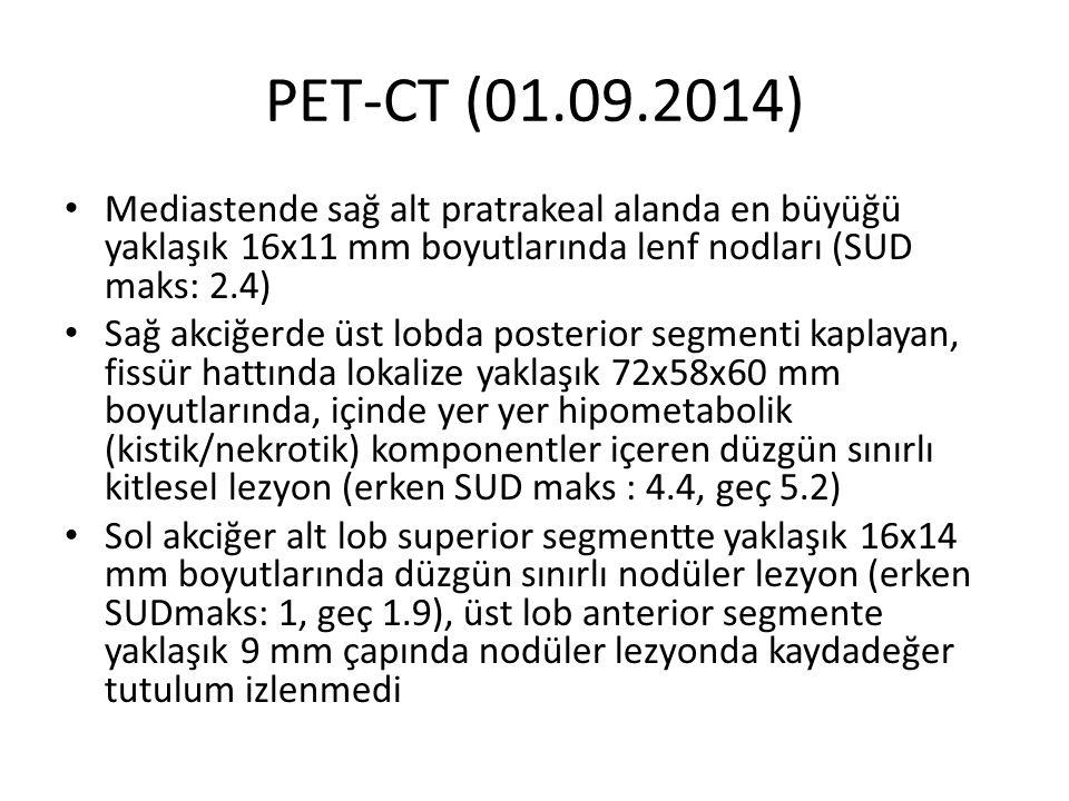PET-CT (01.09.2014) Mediastende sağ alt pratrakeal alanda en büyüğü yaklaşık 16x11 mm boyutlarında lenf nodları (SUD maks: 2.4) Sağ akciğerde üst lobd