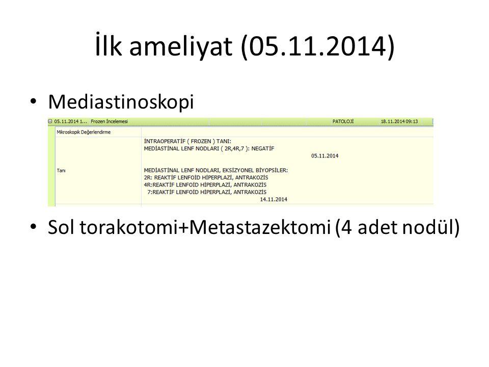 İlk ameliyat (05.11.2014) Mediastinoskopi Sol torakotomi+Metastazektomi (4 adet nodül)