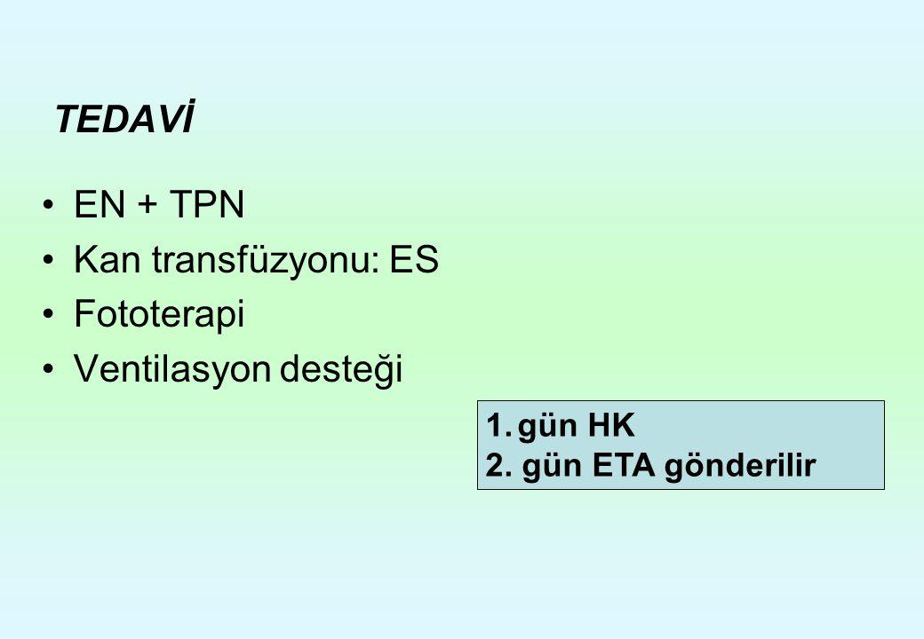TEDAVİ EN + TPN Kan transfüzyonu: ES Fototerapi Ventilasyon desteği 1.gün HK 2. gün ETA gönderilir