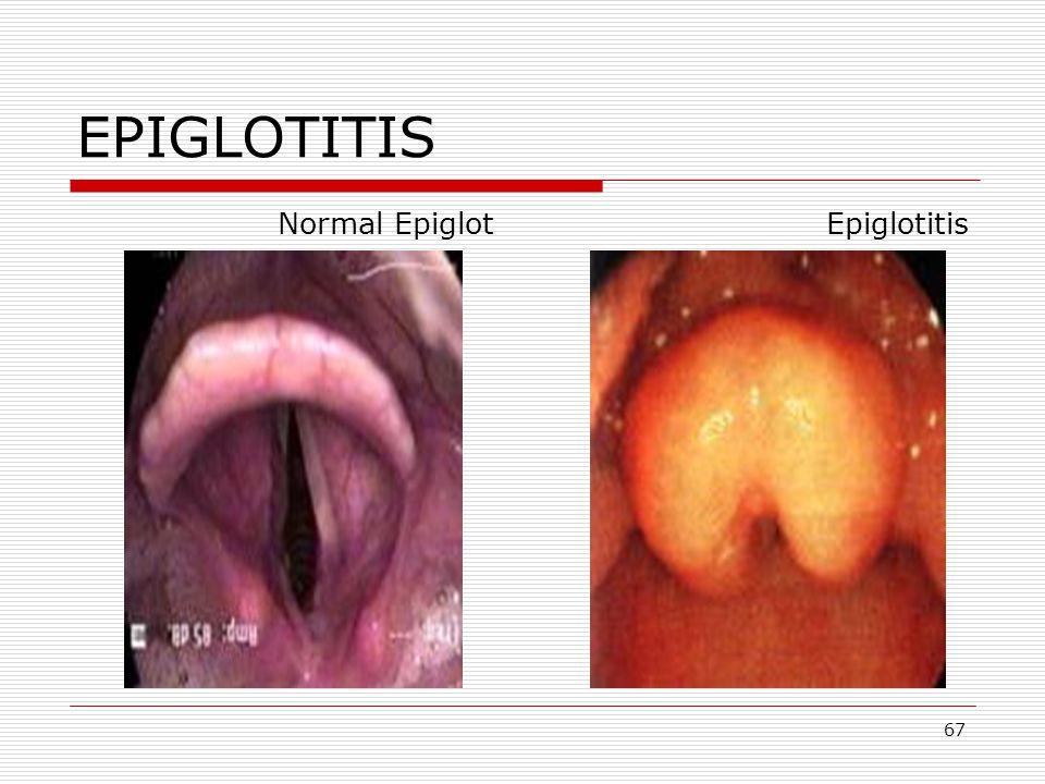 67 EPIGLOTITIS Normal Epiglot Epiglotitis
