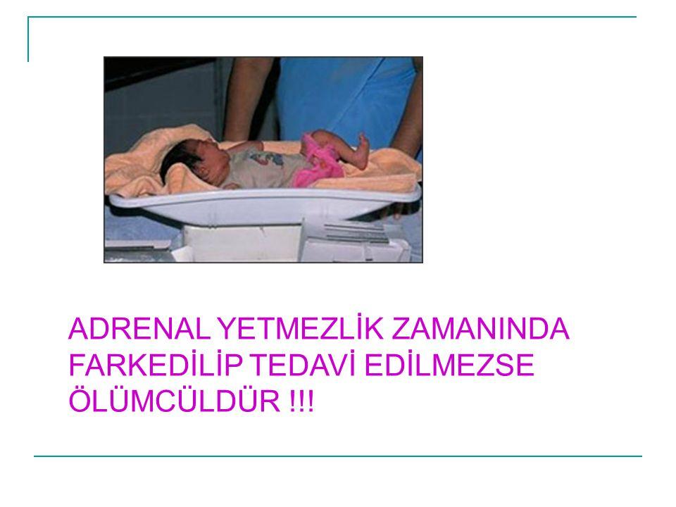 ADRENAL YETMEZLİK ZAMANINDA FARKEDİLİP TEDAVİ EDİLMEZSE ÖLÜMCÜLDÜR !!!
