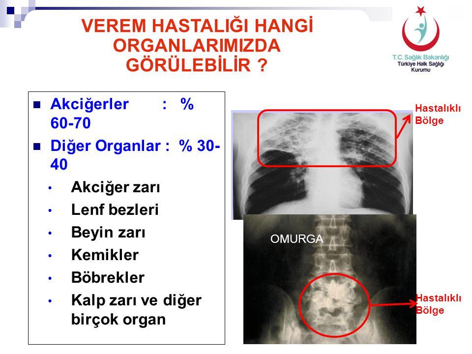 Akciğerler : % 60-70 Diğer Organlar : % 30- 40 Akciğer zarı Lenf bezleri Beyin zarı Kemikler Böbrekler Kalp zarı ve diğer birçok organ OMURGA VEREM HA