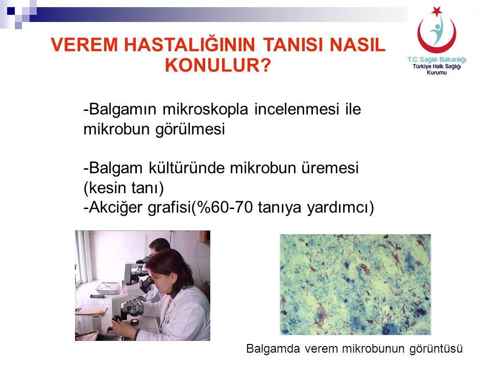 Balgamda verem mikrobunun görüntüsü VEREM HASTALIĞININ TANISI NASIL KONULUR? -Balgamın mikroskopla incelenmesi ile mikrobun görülmesi -Balgam kültürün