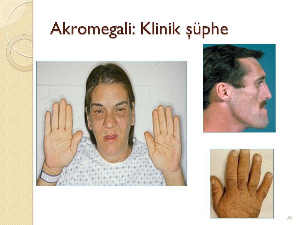 Akromegali: Klinik şüphe 24