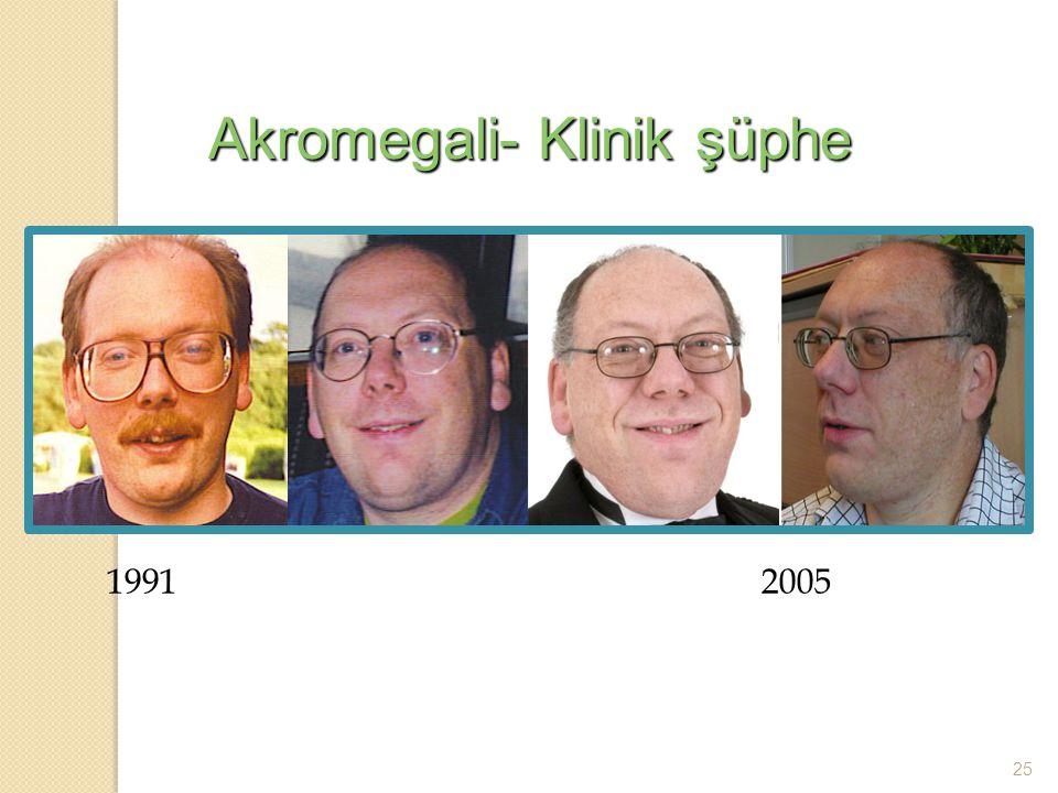 Akromegali- Klinik şüphe 1991 2005 25