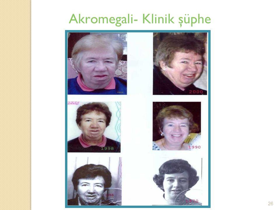 Akromegali- Klinik şüphe 26