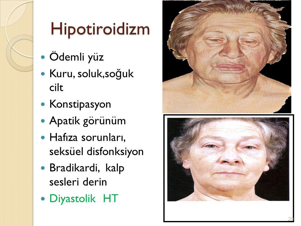 Hipotiroidizm Ödemli yüz Kuru, soluk,so ğ uk cilt Konstipasyon Apatik görünüm Hafıza sorunları, seksüel disfonksiyon Bradikardi, kalp sesleri derin Di