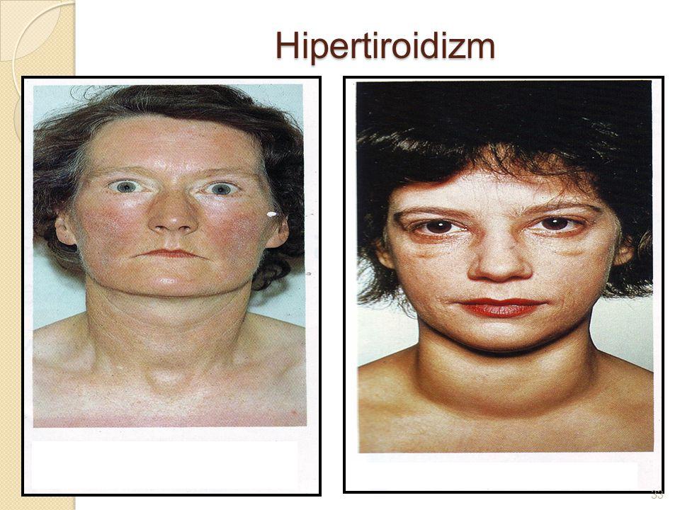 Hipertiroidizm 33