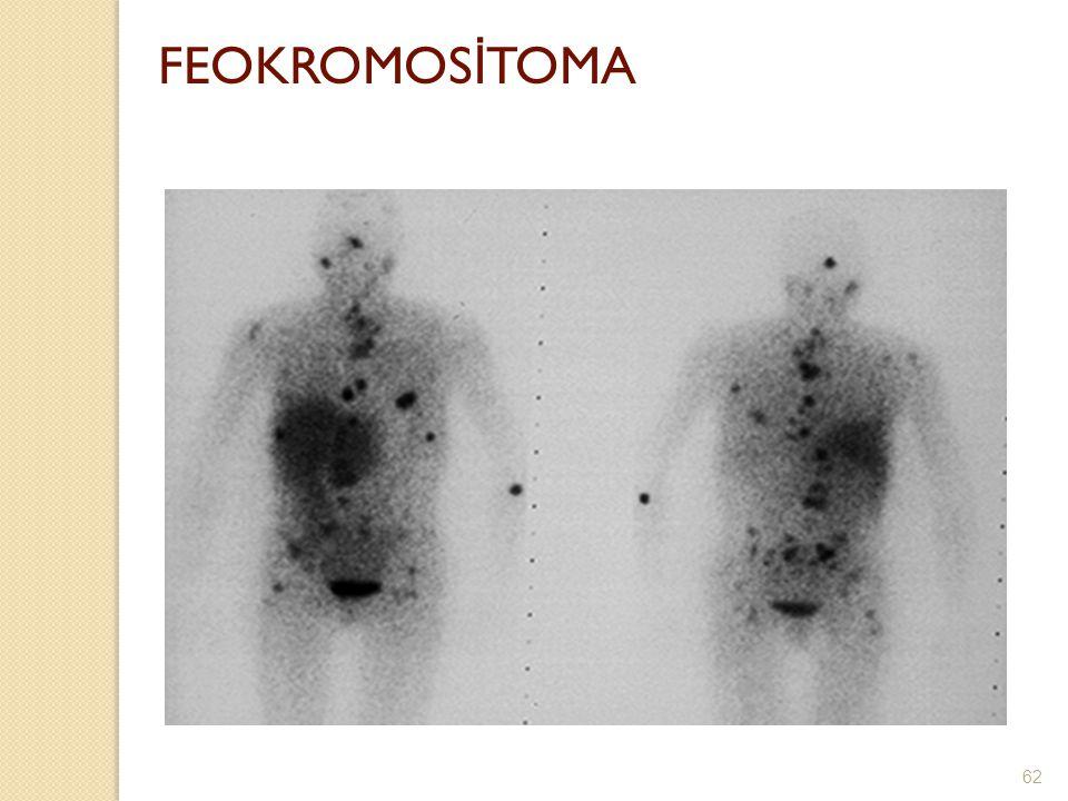 FEOKROMOS İ TOMA 62