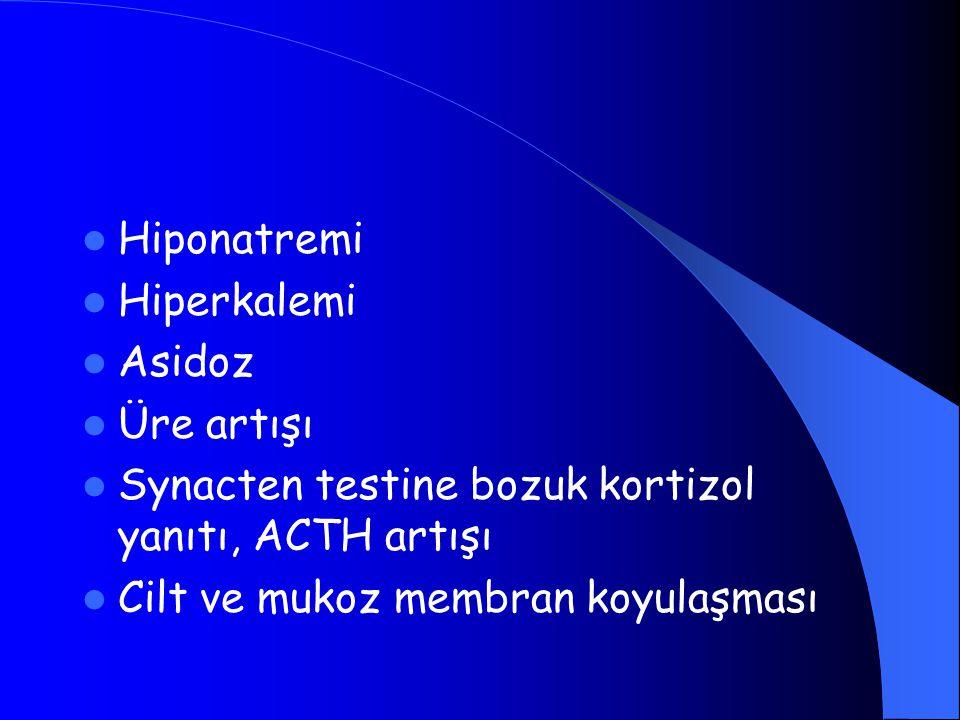 Hiponatremi Hiperkalemi Asidoz Üre artışı Synacten testine bozuk kortizol yanıtı, ACTH artışı Cilt ve mukoz membran koyulaşması