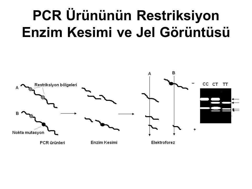 PCR Ürününün Restriksiyon Enzim Kesimi ve Jel Görüntüsü