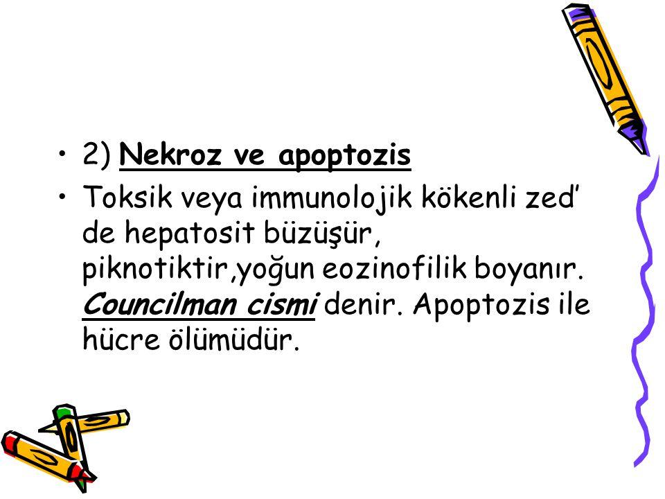 2) Nekroz ve apoptozis Toksik veya immunolojik kökenli zed' de hepatosit büzüşür, piknotiktir,yoğun eozinofilik boyanır. Councilman cismi denir. Apopt