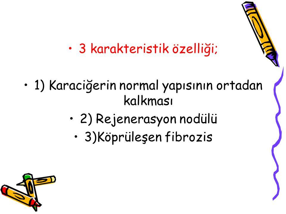3 karakteristik özelliği; 1) Karaciğerin normal yapısının ortadan kalkması 2) Rejenerasyon nodülü 3)Köprüleşen fibrozis