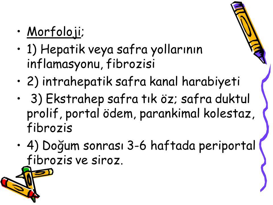 Morfoloji; 1) Hepatik veya safra yollarının inflamasyonu, fibrozisi 2) intrahepatik safra kanal harabiyeti 3) Ekstrahep safra tık öz; safra duktul pro