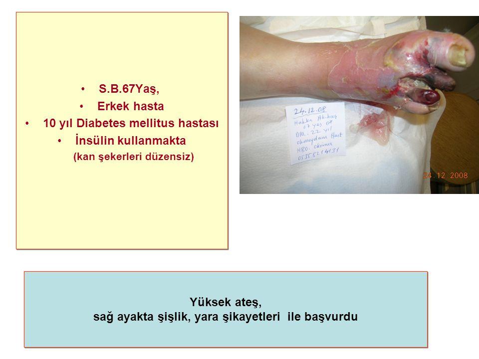 S.B.67Yaş, Erkek hasta 10 yıl Diabetes mellitus hastası İnsülin kullanmakta (kan şekerleri düzensiz) Yüksek ateş, sağ ayakta şişlik, yara şikayetleri ile başvurdu