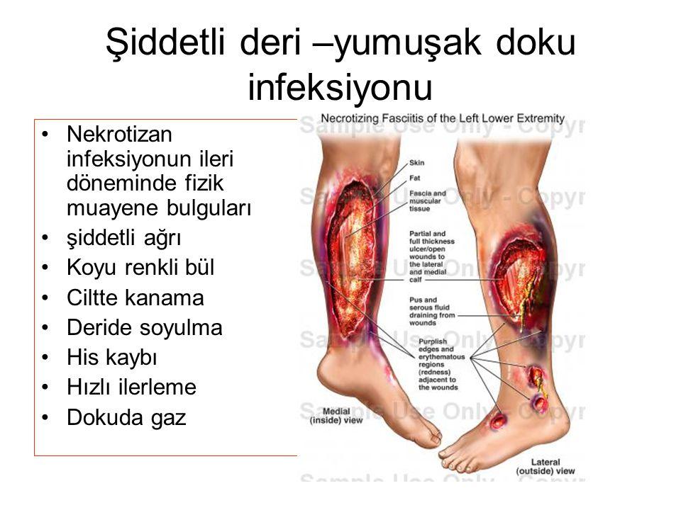 Şiddetli deri –yumuşak doku infeksiyonu Nekrotizan infeksiyonun ileri döneminde fizik muayene bulguları şiddetli ağrı Koyu renkli bül Ciltte kanama Deride soyulma His kaybı Hızlı ilerleme Dokuda gaz