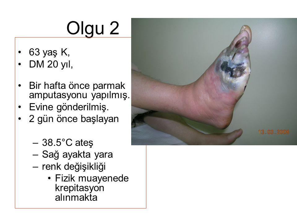 Olgu 2 63 yaş K, DM 20 yıl, Bir hafta önce parmak amputasyonu yapılmış. Evine gönderilmiş. 2 gün önce başlayan –38.5°C ateş –Sağ ayakta yara –renk değ