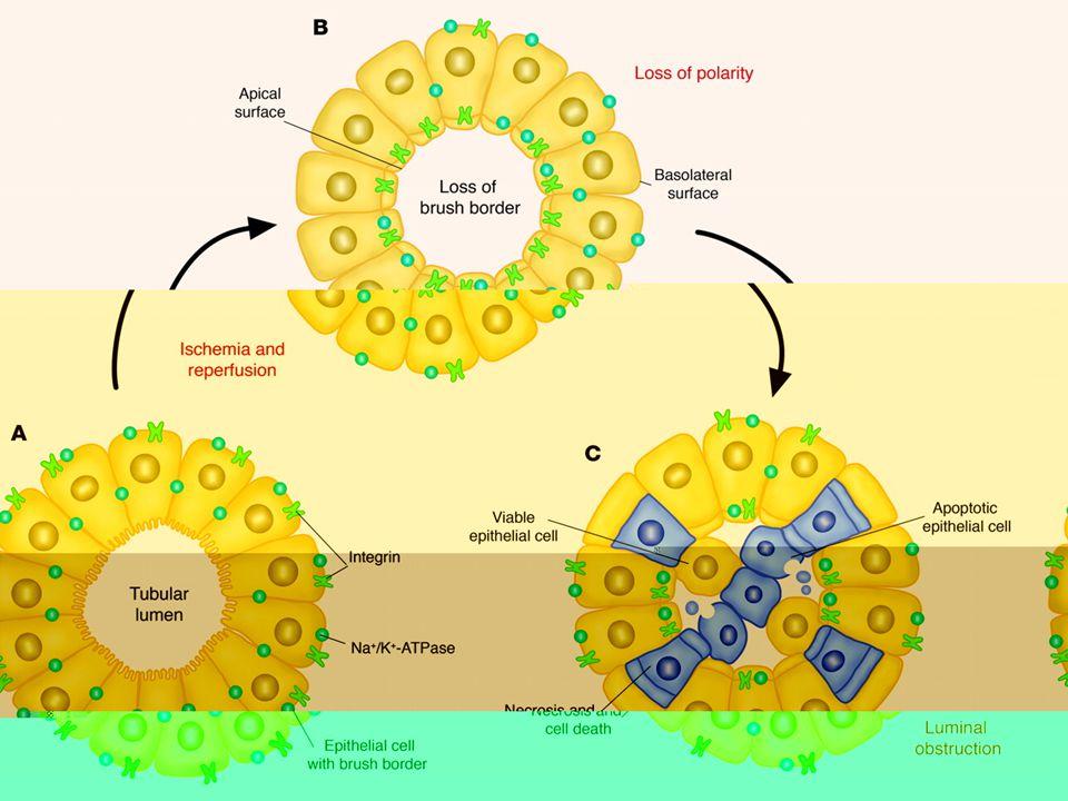 Tanısal Yaklaşım Dikkatli öykü ve dosya incelemesi Fizik muayene Lab: Biyokimyasal ve serolojik testler İdrar sedimenti ve biyokimyasal incelemeler USG ve diğer radyolojik yöntemler