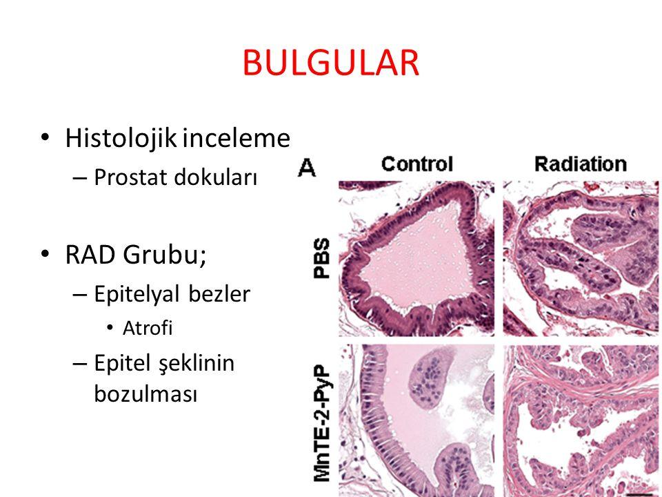 BULGULAR Histolojik inceleme – Prostat dokuları RAD Grubu; – Epitelyal bezler Atrofi – Epitel şeklinin bozulması Sınıf 1. hafif