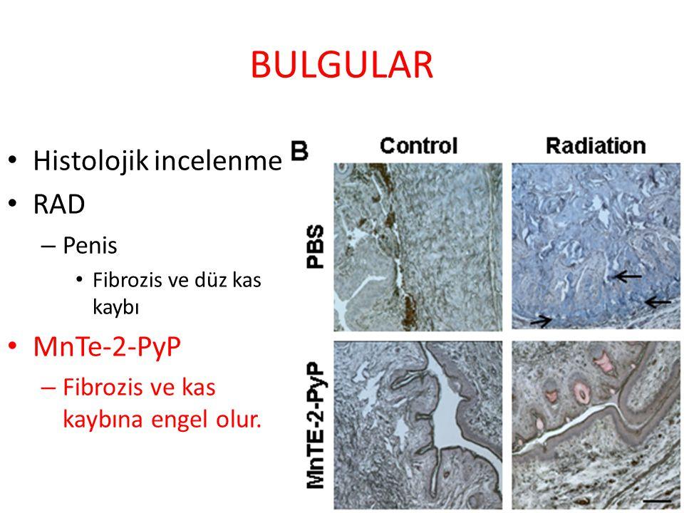BULGULAR Histolojik incelenme RAD – Penis Fibrozis ve düz kas kaybı MnTe-2-PyP – Fibrozis ve kas kaybına engel olur.