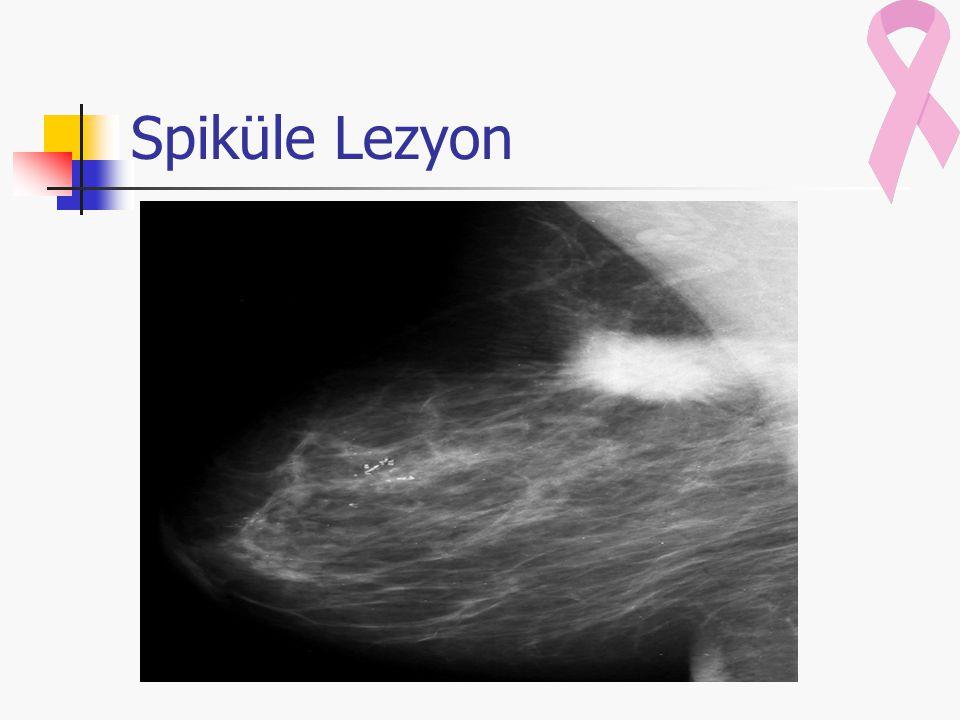 Spiküle Lezyon