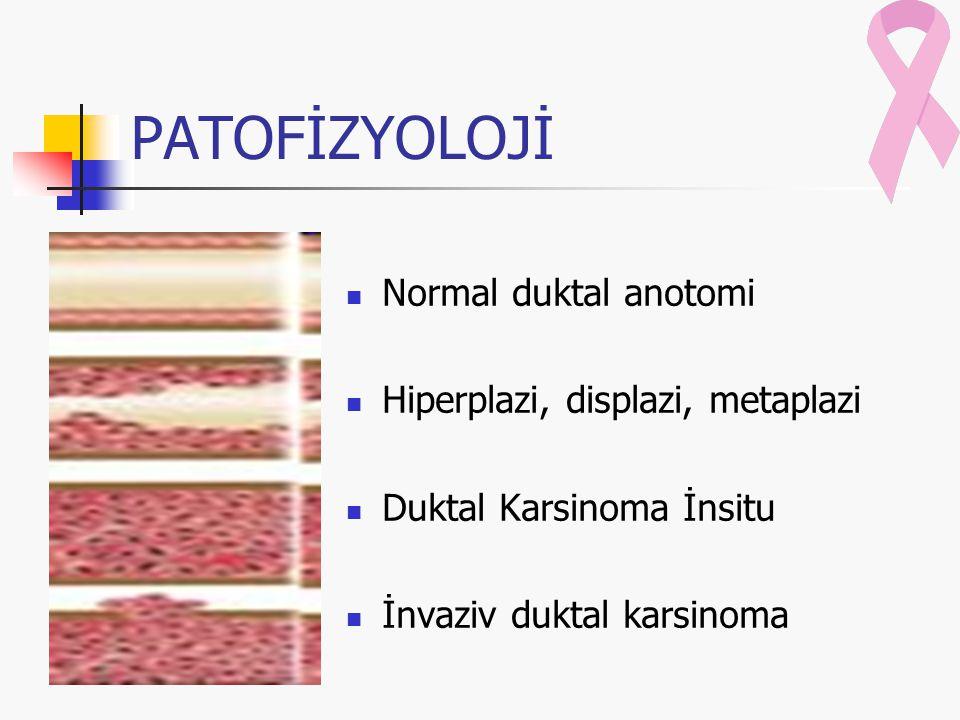 PATOFİZYOLOJİ Normal duktal anotomi Hiperplazi, displazi, metaplazi Duktal Karsinoma İnsitu İnvaziv duktal karsinoma