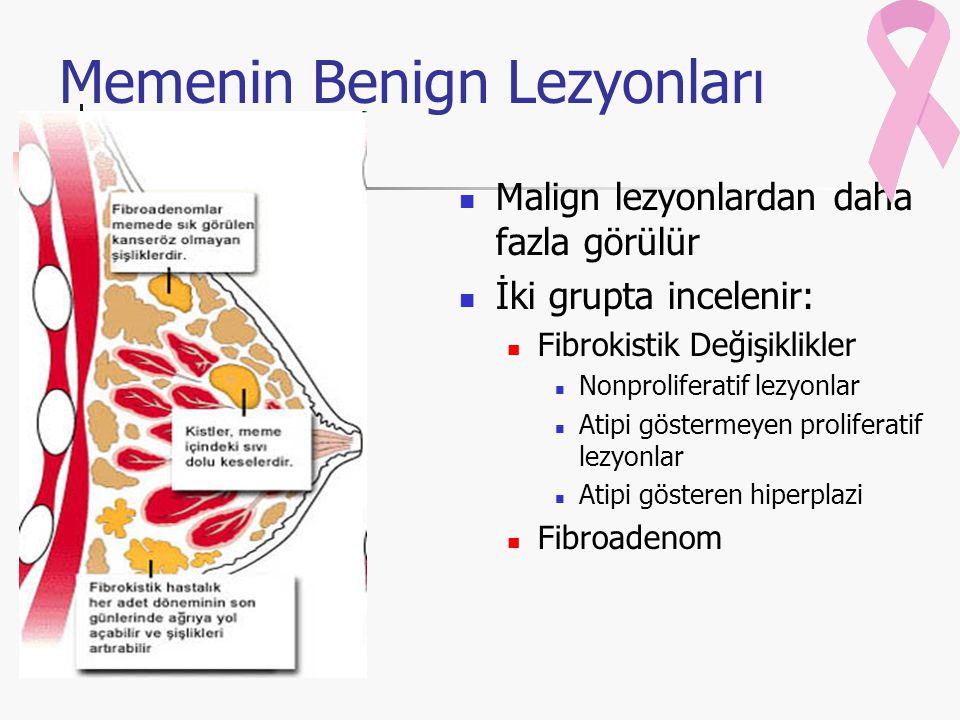 Memenin Benign Lezyonları Malign lezyonlardan daha fazla görülür İki grupta incelenir: Fibrokistik Değişiklikler Nonproliferatif lezyonlar Atipi göstermeyen proliferatif lezyonlar Atipi gösteren hiperplazi Fibroadenom