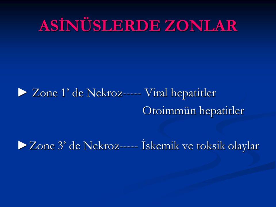 ASİNÜSLERDE ZONLAR ► Zone 1' de Nekroz----- Viral hepatitler Otoimmün hepatitler Otoimmün hepatitler ►Zone 3' de Nekroz----- İskemik ve toksik olaylar
