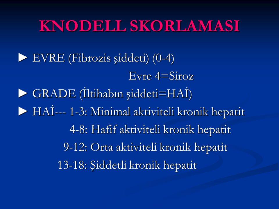 KNODELL SKORLAMASI ► EVRE (Fibrozis şiddeti) (0-4) Evre 4=Siroz ► GRADE (İltihabın şiddeti=HAİ) ► HAİ--- 1-3: Minimal aktiviteli kronik hepatit 4-8: Hafif aktiviteli kronik hepatit 4-8: Hafif aktiviteli kronik hepatit 9-12: Orta aktiviteli kronik hepatit 9-12: Orta aktiviteli kronik hepatit 13-18: Şiddetli kronik hepatit 13-18: Şiddetli kronik hepatit